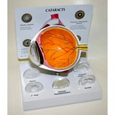 Cataract Eye Model and Lenses