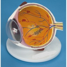 Ocular Disease Eye Model