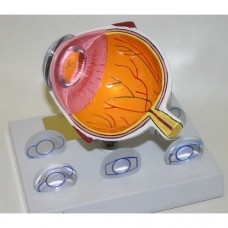Intra Ocular Lens Model and IOL Lenses